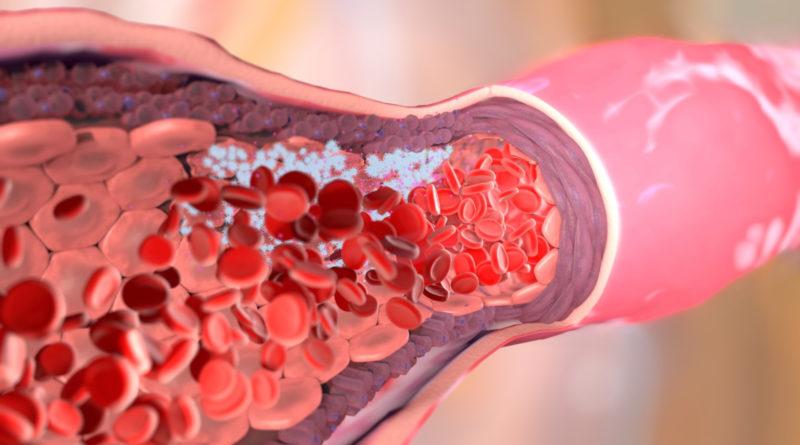 Тромбоэмболия. Как тромбы убивают людей?
