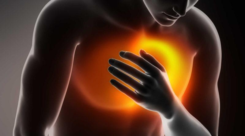 Остановка сердца, инфаркт и сердечный приступ