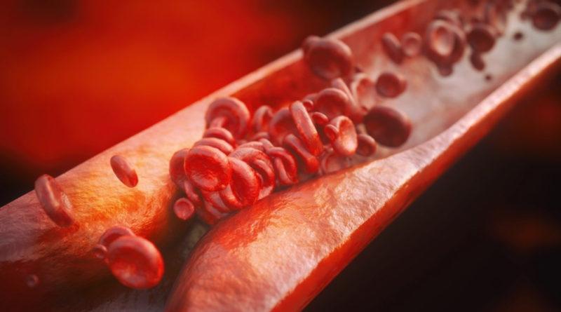Чем опасен повышенный холестерин?